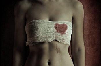 Cicatrizes